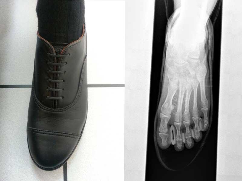 Ein zweigeteiltes Bild: links ein Fuß mit den Carets-Schuhen. Rechts ein Röntgenbild von Fuß mit Schuh, der zeigt, dass die Zehen nicht an der Schuhspitze liegen, sondern ein Stück weiter dahinter - dort, wo die Zehen am meisten Platz haben.